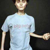 Анорексія набирає обертів в століття ожиріння