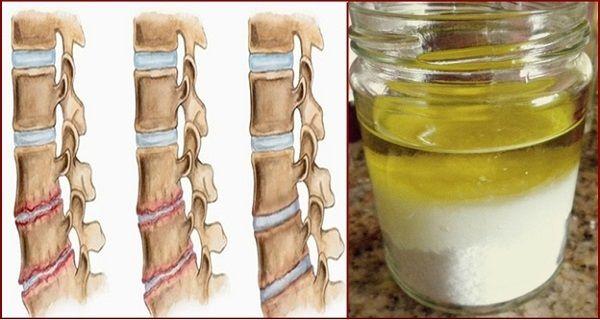 Сіль і масло: лікарська суміш після її застосування, ви не будете відчувати біль протягом декількох років!