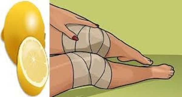 Ось, як використовувати лимон, щоб позбутися від болю в колінах в домашніх умовах