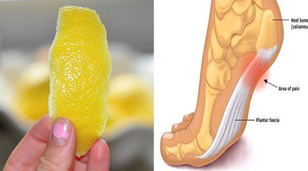 Шкірка лимона може полегшити хронічний біль в суглобах!