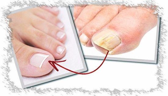 Лікування грибка нігтів оцтом в домашніх умовах: рецепти народної медицини