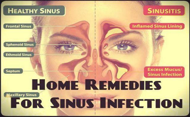 Кращий засіб для лікування синуситу без антибіотиків