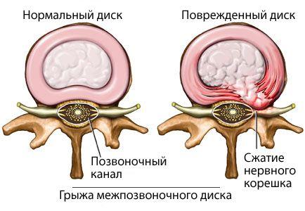 грижа поперекового відділу хребта