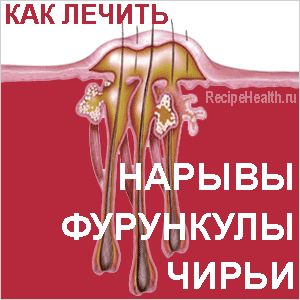Нариви, фурункули, чиряки: народні засоби лікування