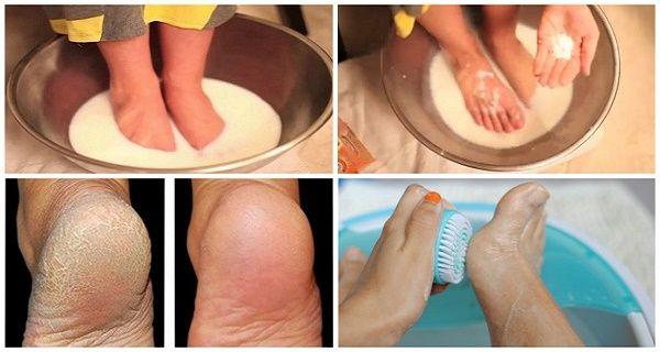 Не витрачайте більше гроші на педикюр: всього два інгредієнта і ваші ноги будуть виглядати надзвичайно!