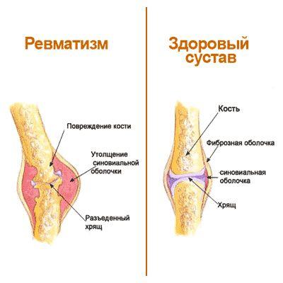 Про лікування ревматизму суглобів народними засобами