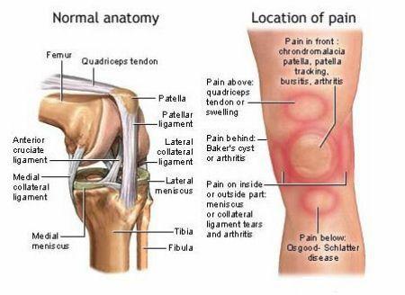 Він уникнув операції колінного суглоба і позбувся болю за допомогою цих 2 інгредієнтів! Тепер він поділився рецептом з усім світом!