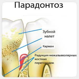 Пародонтоз: лікування народними засобами - найефективніший