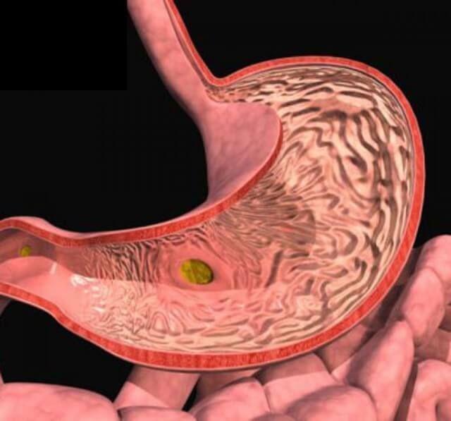 Виразка шлунка і дванадцятипалої кишки: 19 супер ефективних народних засобів