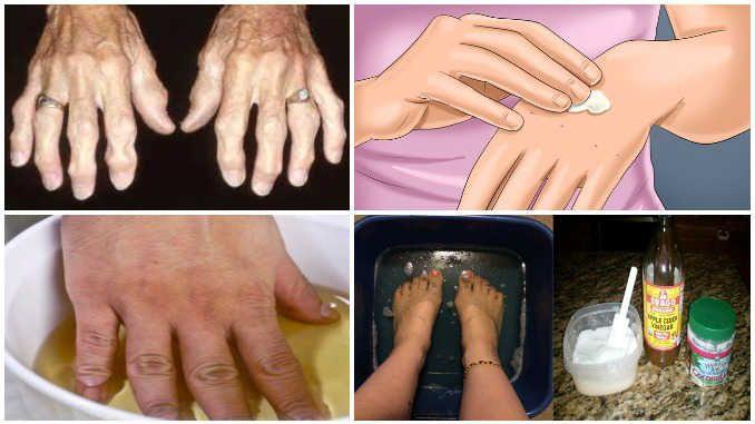 Спробуйте ці народні засоби і позбудьтеся від артриту і болю раз і назавжди!