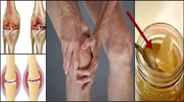 Причина болю колінного суглоба є пошкодження хряща, і ось як природно регенерувати його!