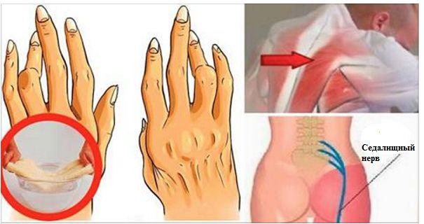 Простий і легкий трюк для полегшення болю при артриті, болі в спині і запалення сідничного нерва!