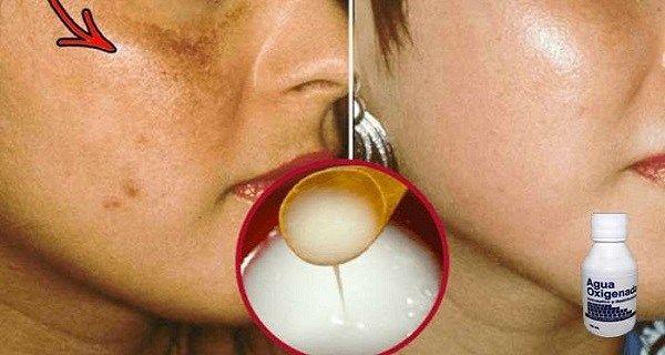 Саморобний рецепт, завдяки якому зникають темні плями на шкірі!