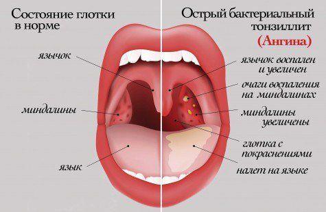 Поради для тих, хто часто хворіє на ангіну