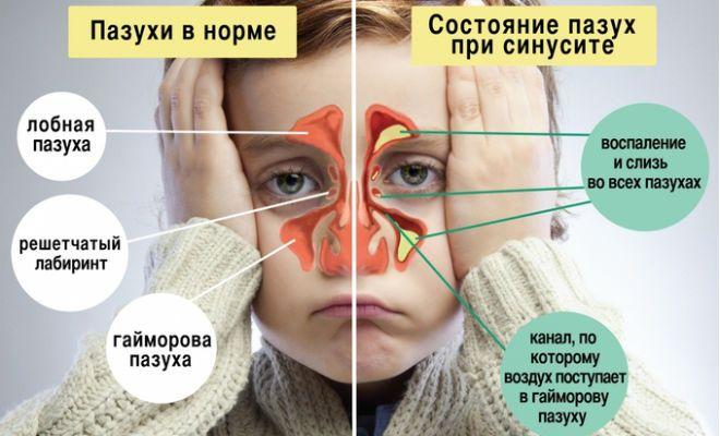 Поради отоларинголога. Гайморит - лікування без проколів