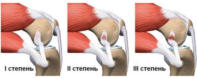 Травми колінного суглоба (розриви) - народні методи лікування