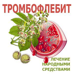 Тромбофлебіт: симптоми і лікування народними засобами