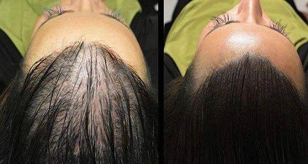 Чарівний рецепт для швидкого росту волосся!