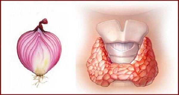 Лікарі підтвердили: червона цибуля творить чудеса з щитовидною залозою (рецепт)!