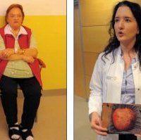 Лікарі прийняли 28-кілограмову пухлину за ожиріння