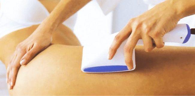 Все про апаратний вакуумний масаж від целюліту
