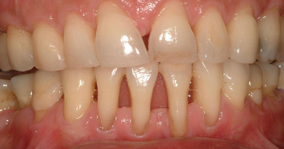 Ви помітили оголення шийки або кореня зуба? Негайно починайте лікування - 6 натуральних рецептів!