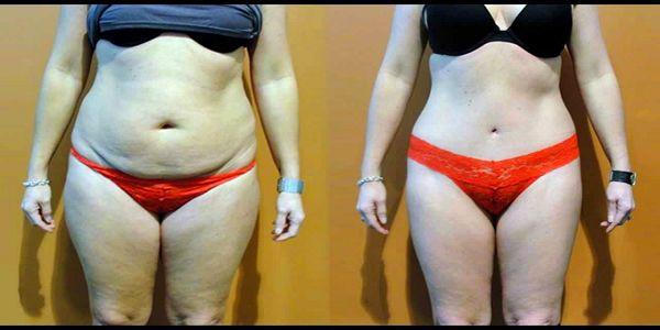 За півтора місяця мінус 15 кг: вона схудла за допомогою цих двох інгредієнтів!