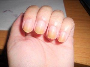 Жінка побачила дивні смуги на нігтях. Хто б міг подумати, що це врятує їй життя!